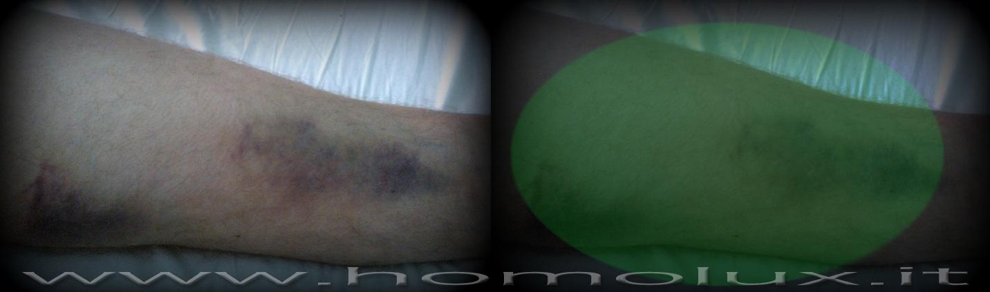 cromoterapia - lesioni muscoli posteriori gambe